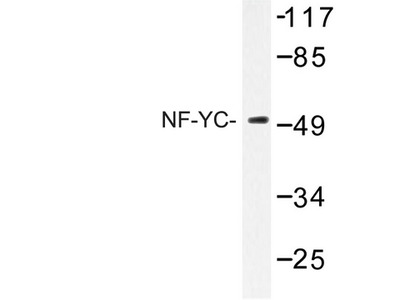 NFYC Polyclonal Antibody