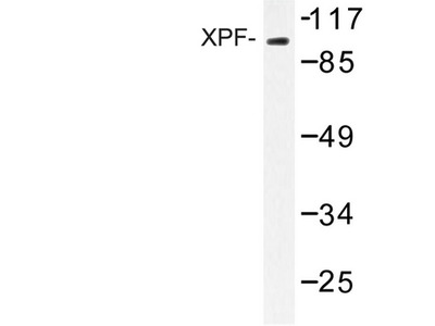 ERCC4 / XPF Antibody