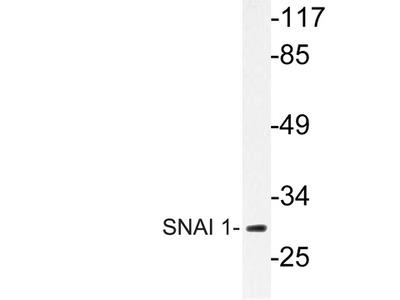 SNAI1 / SNAIL-1 Polyclonal Antibody