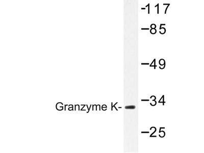 GZMK / Granzyme K Antibody