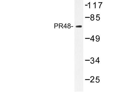 PPP2R3B Antibody