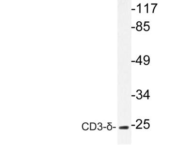 CD3D Polyclonal Antibody