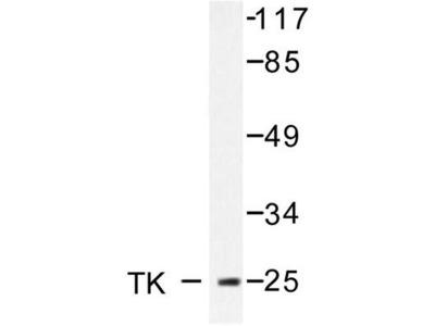 TK1 / TK / Thymidine Kinase Antibody