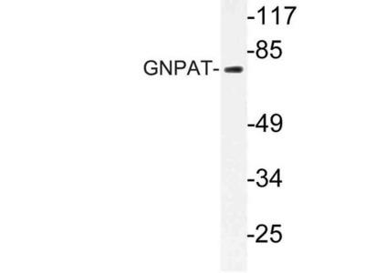 GNPAT / DHAP-AT Antibody