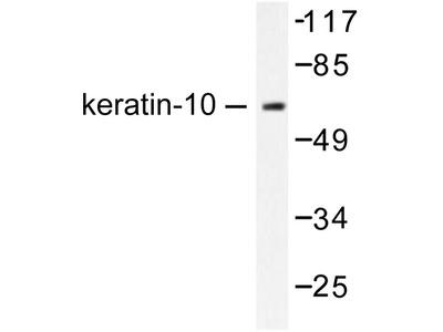 KRT10 / CK10 / Cytokeratin 10 Antibody