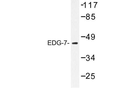 LPAR3 / LPA3 / EDG7 Antibody