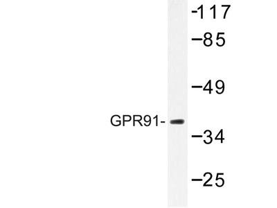SUCNR1 / GPR91 Polyclonal Antibody