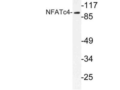 NFATC4 / NFAT3 Polyclonal Antibody