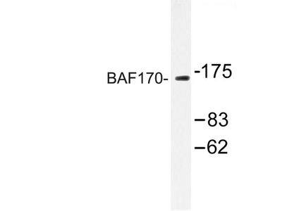 SMARCC2 Polyclonal Antibody