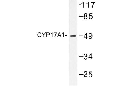 CYP17 / CYP17A1 Antibody