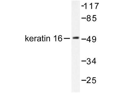 KRT16 / CK16 / Cytokeratin 16 Antibody