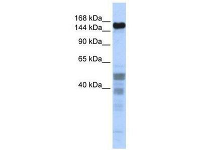 anti-ZNF335 antibody