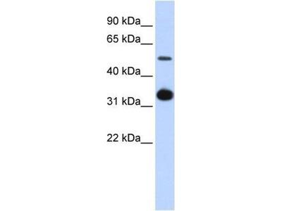 anti-GDF2 antibody