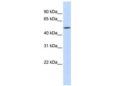 anti-IFIT2 (SRSF11) antibody