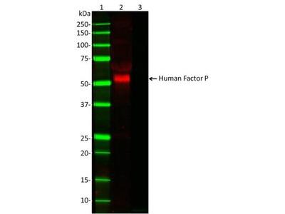 Properdin Antibody (10-18)