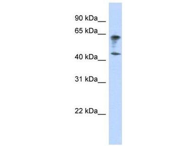 anti-Immunoglobulin Superfamily, Member 11 (IGSF11) (Middle Region) antibody