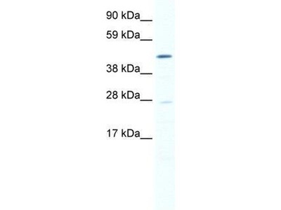 anti-SET and MYND Domain Containing 1 (SMYD1) (N-Term) antibody