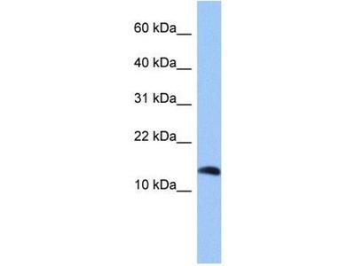 anti-PTH2 Antibody