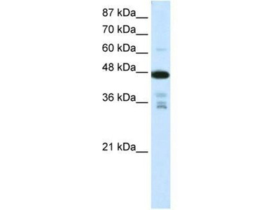 anti-PRMT2 antibody