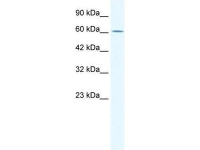 anti-ZNF182 (Zinc Finger Protein 182) antibody