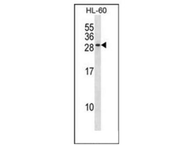 anti-RAB15 antibody