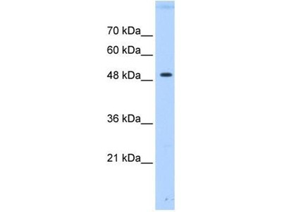 anti-PTPN1 antibody