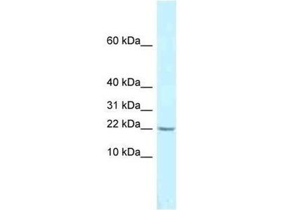 anti-MED10 antibody