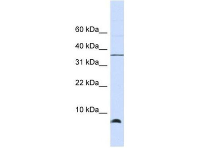 anti-HSP10 (groS) antibody