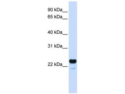anti-C1QTNF1 antibody