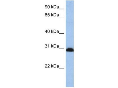 anti-PSMD8 (psmd8-a) antibody