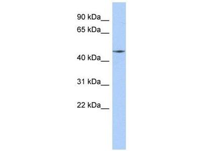 anti-Ribosomal Modification Protein RimK-Like Family Member A (RIMKLA) (Middle Region) antibody