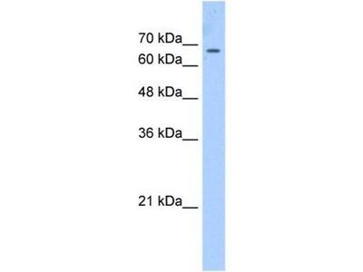 anti-CDY1 Antibody
