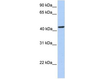 anti-PAICS antibody
