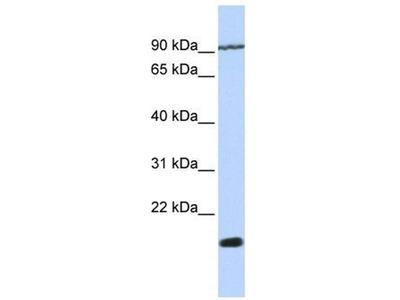 anti-TM4SF4 antibody