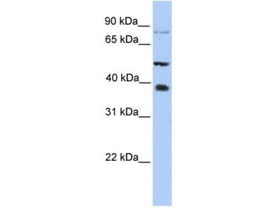anti-mettl2 Antibody