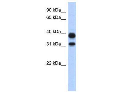 anti-CHIA Antibody