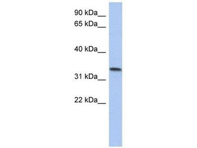 anti-CCDC172 (C10orf96) antibody