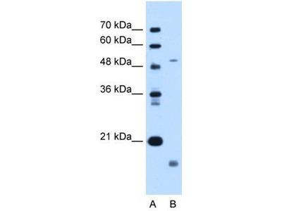 anti-Zinc Metalloproteinase, Ste24 (Zmpste24) antibody