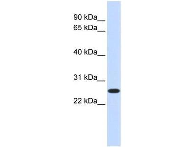 anti-ctdnep1a (DULLARD) antibody