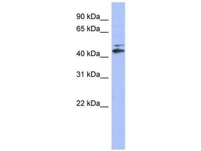 anti-CYP20A1 antibody