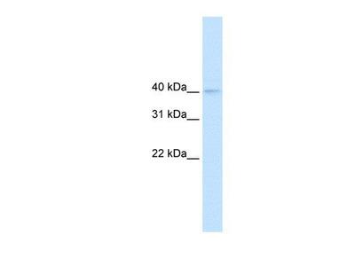 anti-Nudix (Nucleoside Diphosphate Linked Moiety X)-Type Motif 9 (NUDT9) antibody