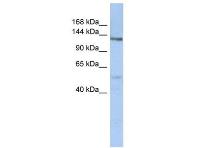 anti-CHPF antibody