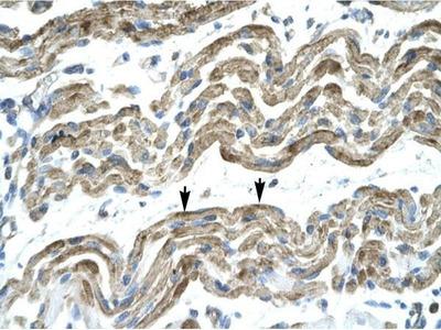 anti-Zinc Finger Protein 828 (ZNF828) (Middle Region) antibody