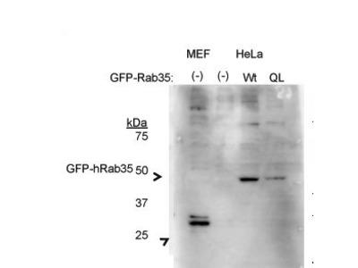 anti-RAB35 antibody