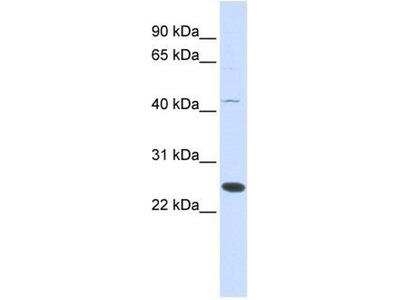anti-METTL21A (FAM119A) antibody