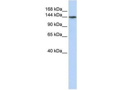 anti-ATP11B Antibody