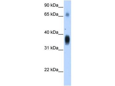 anti-NOV (plexin A1) antibody