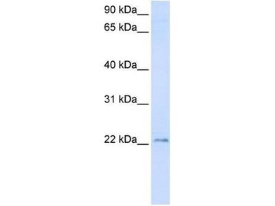 anti-TMEM9 antibody