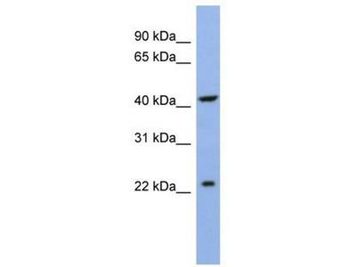 anti-SLC35F1 antibody