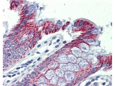 anti-Acaa1a antibody